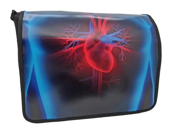 Röntgenbild Herz